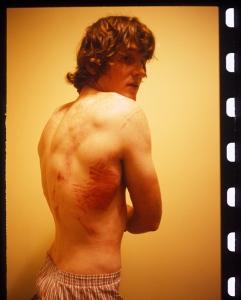 Van-Homan-bruised-ribs