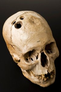 L0058402 Bronze Age skull from Jericho, Palestine, 2200-2000